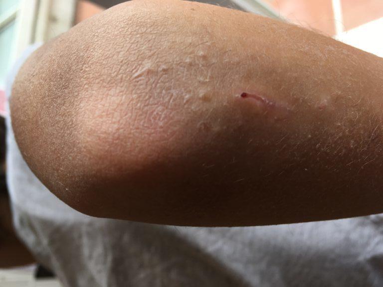 Ianthis tout savoir sur la cicatrisation