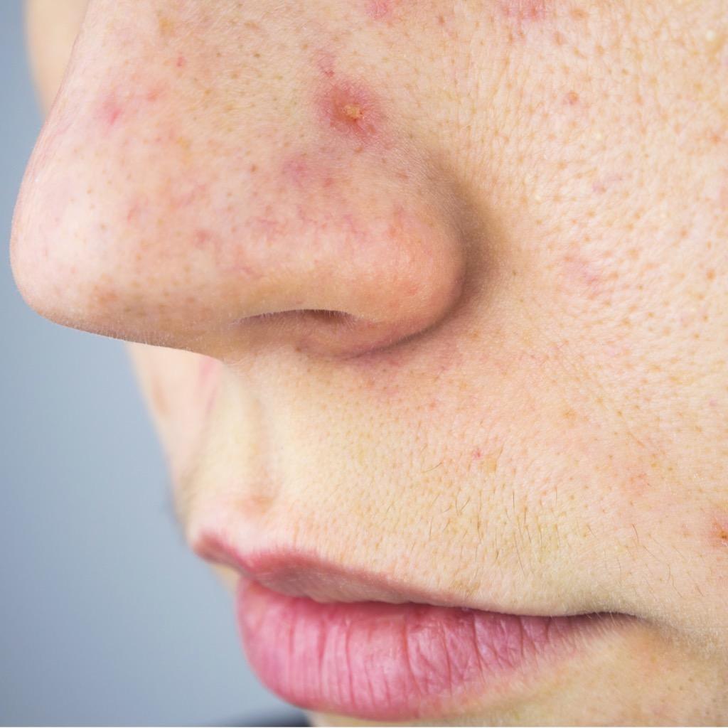 acné et rougeurs visage femme; cica concentré