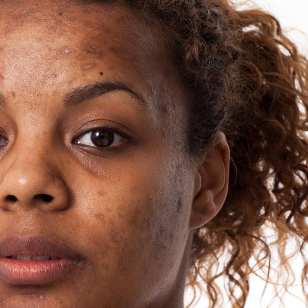 Traces et cicatrices peau femme; cica concentré par ianthis
